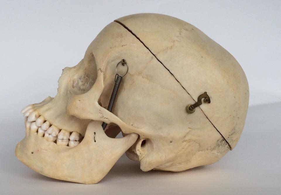 Kringloop vondst: schedel